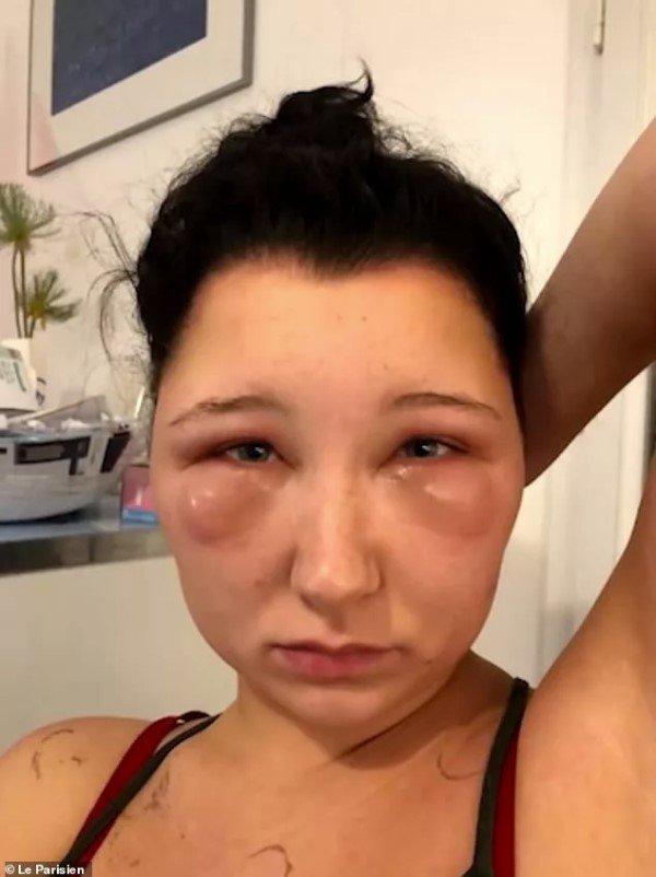 Joven parisina se tiñe el pelo en casa y sufre una agresiva alergia que le hace crecer la cara sin control