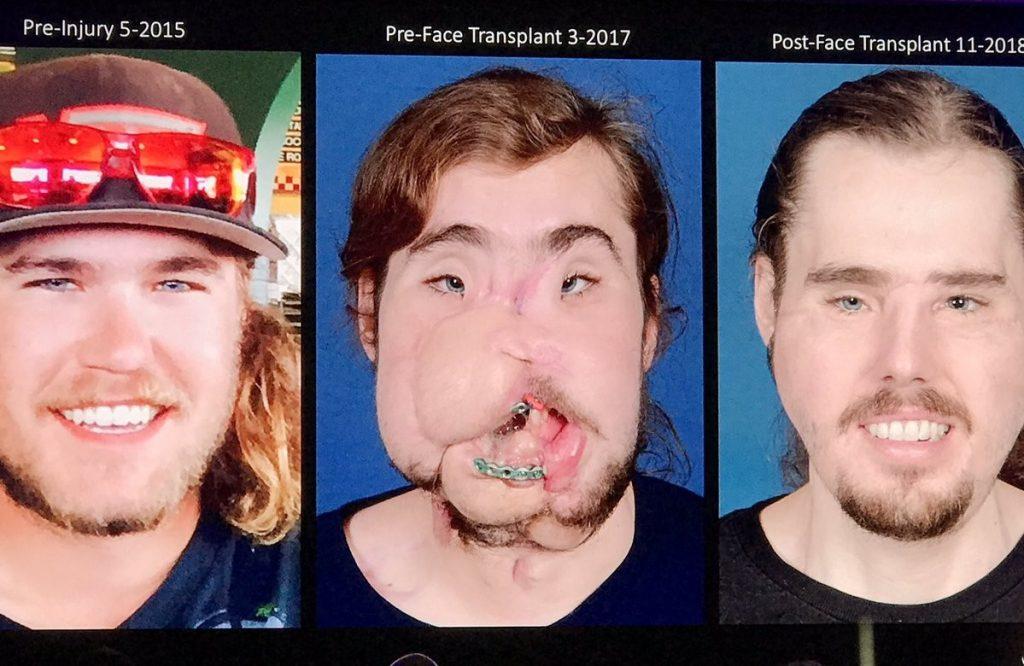La nueva cara de Cameron Underwood: el antes y el después del trasplante facial más avanzado del mundo