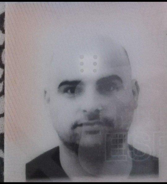 Los caminos de la alopecia... llevan a Turquía