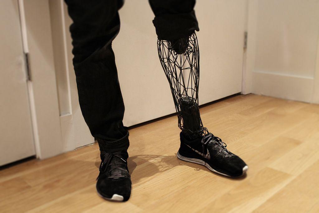 Cuando no se te cargan las texturas de la pierna
