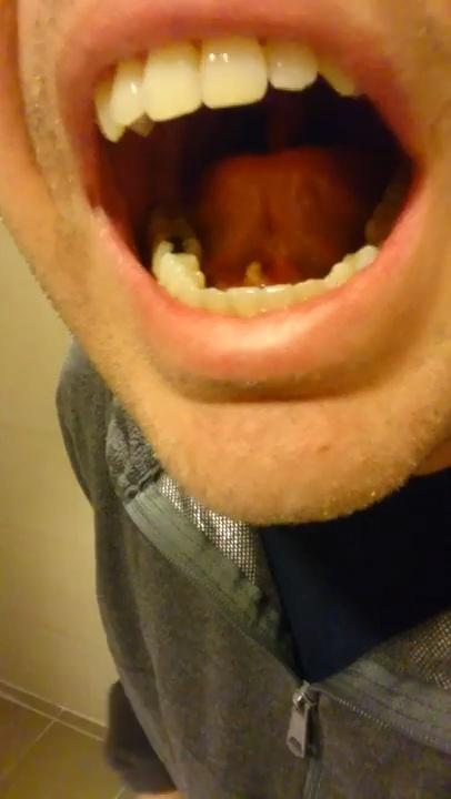 Cuando notas algo debajo de la lengua y decides mirarte en el espejo