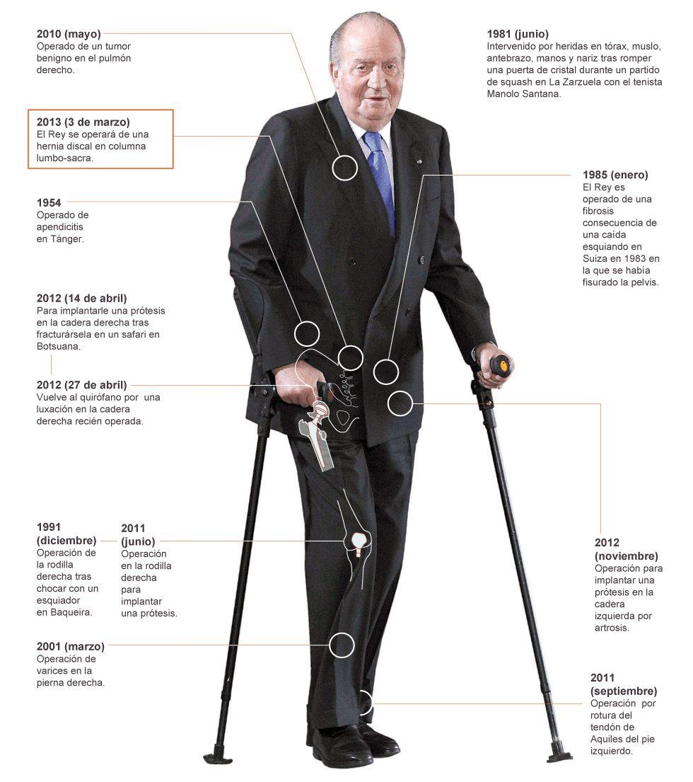 Espero que esto no signifique el fin de mi género periodístico español favorito: las infografías de las lesiones de Juan Carlos.