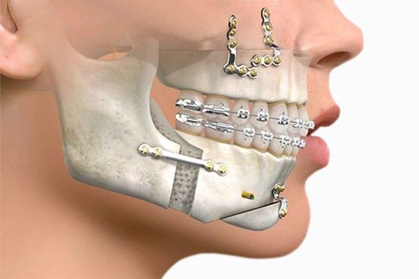 De esto es capaz la cirugía ortognática